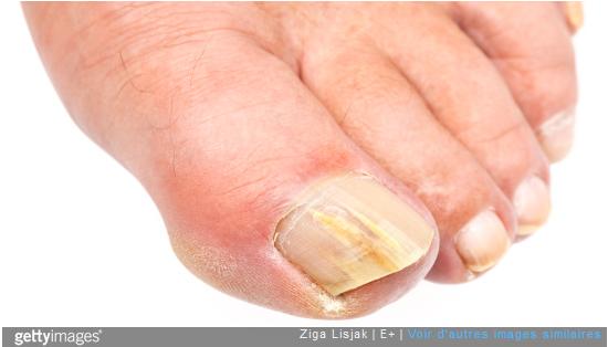 Mycoses des ongles des pieds : quel traitement ?